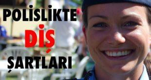 polislikte-dis-sartlari-696x348